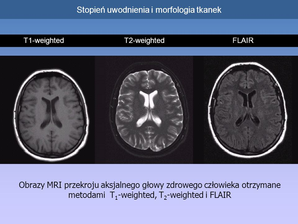 Obrazy MRI przekroju aksjalnego głowy zdrowego człowieka otrzymane metodami T 1 -weighted, T 2 -weighted i FLAIR T1-weighted T2-weighted FLAIR Stopień uwodnienia i morfologia tkanek