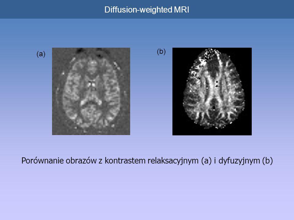 Porównanie obrazów z kontrastem relaksacyjnym (a) i dyfuzyjnym (b) Diffusion-weighted MRI (a) (b)