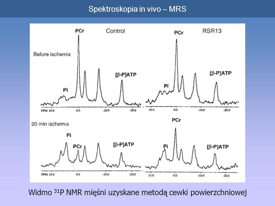 Widmo 31 P NMR mięśni uzyskane metodą cewki powierzchniowej Spektroskopia in vivo – MRS