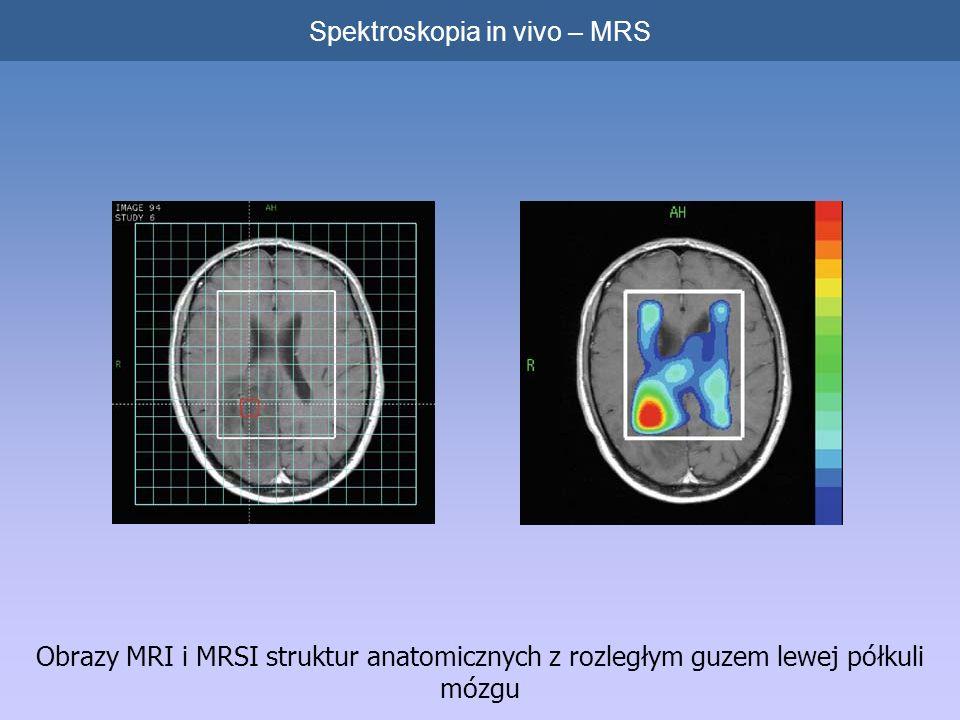 Obrazy MRI i MRSI struktur anatomicznych z rozległym guzem lewej półkuli mózgu Spektroskopia in vivo – MRS