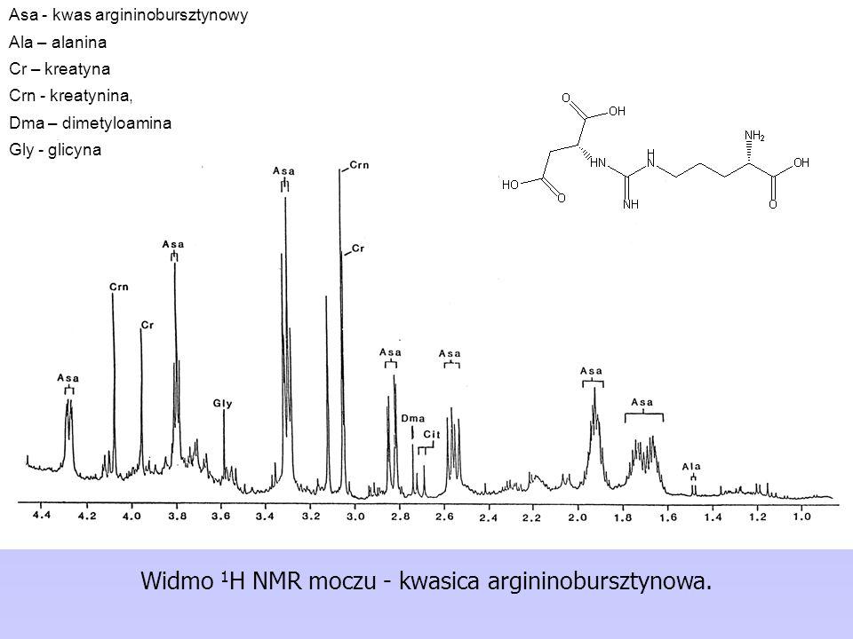 Widmo 1 H NMR moczu - kwasica argininobursztynowa.