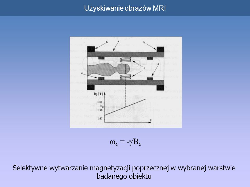 Uzyskiwanie obrazów MRI Najważniejsze metody obrazowania: o metoda projekcji-rekonstrukcji (Lauterbur), o standardowa metoda gradientowa (Kumar i Ernst), o metoda echa planarnego (EPI; Mansfield)
