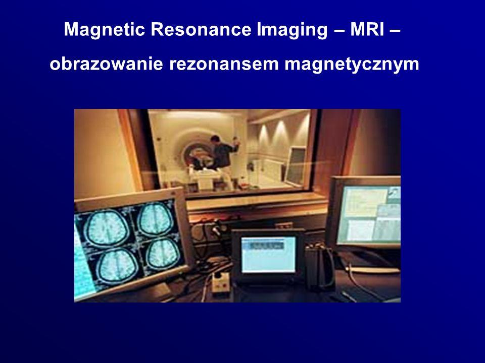 Magnetic Resonance Imaging – MRI – obrazowanie rezonansem magnetycznym