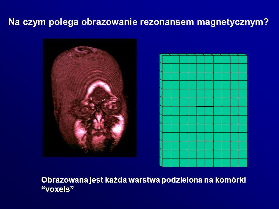 Na czym polega obrazowanie rezonansem magnetycznym? Obrazowana jest każda warstwa podzielona na komórki voxels