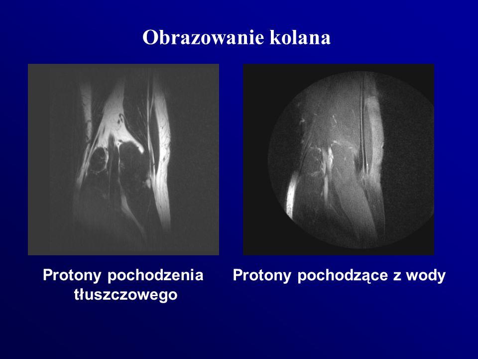 Protony pochodzenia tłuszczowego Protony pochodzące z wody Obrazowanie kolana