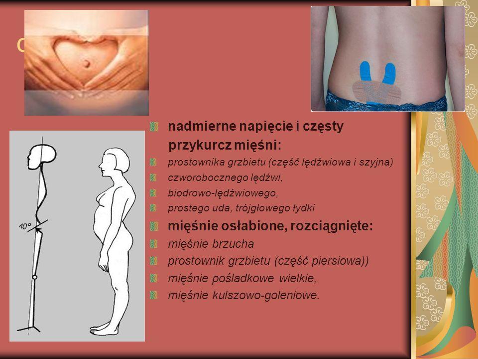 ciąża nadmierne napięcie i częsty przykurcz mięśni: prostownika grzbietu (część lędźwiowa i szyjna) czworobocznego lędźwi, biodrowo-lędźwiowego, prost