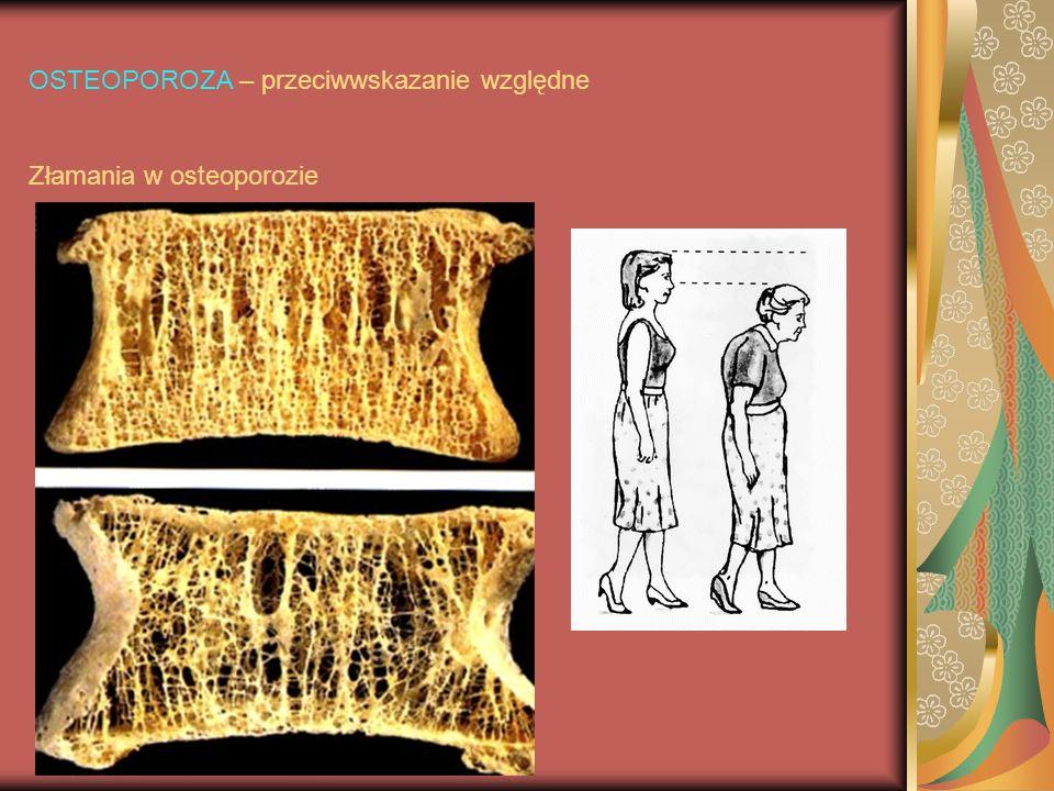OSTEOPOROZA – przeciwwskazanie względne Złamania w osteoporozie