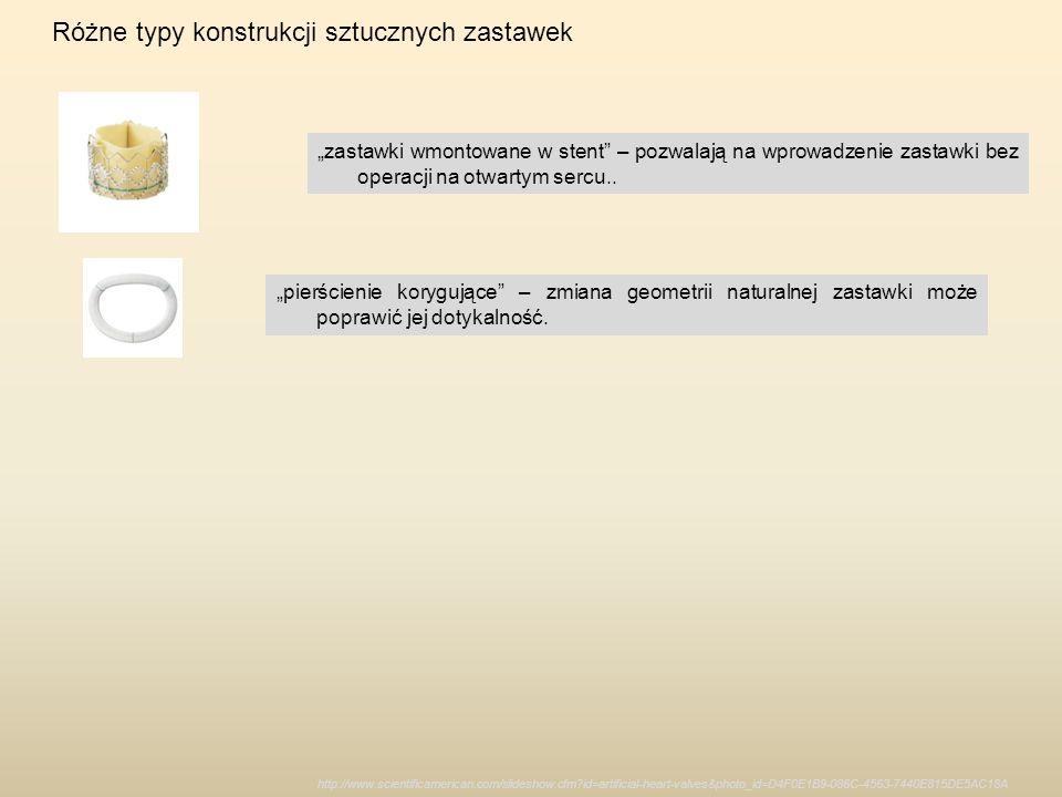 http://www.scientificamerican.com/slideshow.cfm?id=artificial-heart-valves&photo_id=D4F0E1B9-086C-4563-7440E815DE5AC18A Różne typy konstrukcji sztuczn