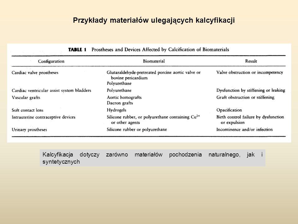 Przykłady materiałów ulegających kalcyfikacji Kalcyfikacja dotyczy zarówno materiałów pochodzenia naturalnego, jak i syntetycznych