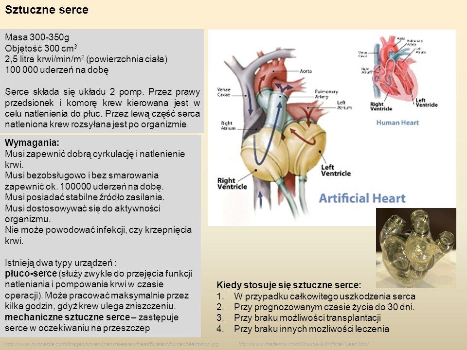 Sztuczne serce http://www.syncardia.com/images/stories/pressreleases/theartificialandhumanheartssm1.jpg Masa 300-350g Objętość 300 cm 3 2,5 litra krwi