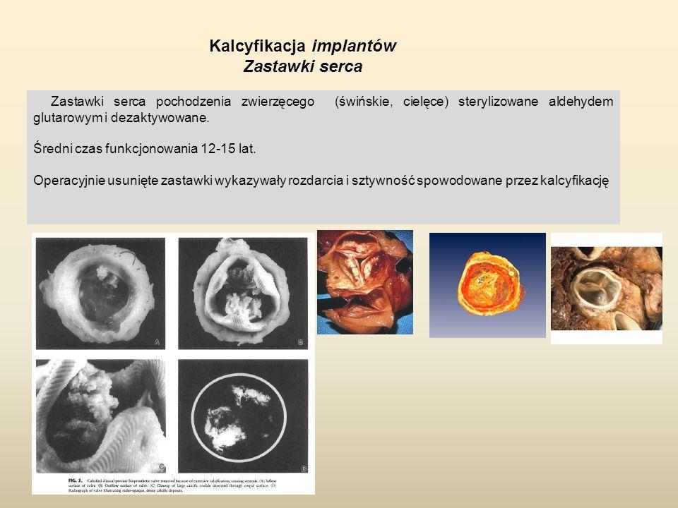 Kalcyfikacja implantów Zastawki serca Zastawki serca pochodzenia zwierzęcego (świńskie, cielęce) sterylizowane aldehydem glutarowym i dezaktywowane. Ś