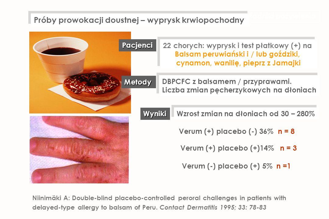 22 chorych: wyprysk i test płatkowy (+) na Balsam peruwiański i / lub goździki, cynamon, wanilię, pieprz z Jamajki 22 chorych: wyprysk i test płatkowy