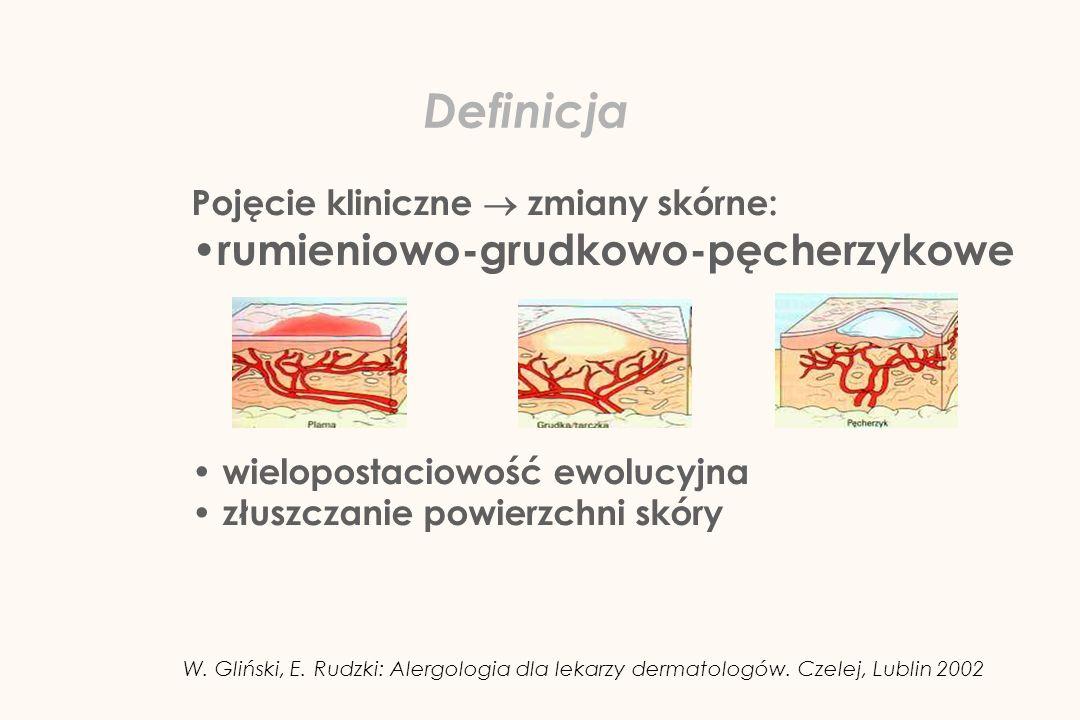Pojęcie kliniczne zmiany skórne: rumieniowo-grudkowo-pęcherzykowe wielopostaciowość ewolucyjna złuszczanie powierzchni skóry Definicja W. Gliński, E.