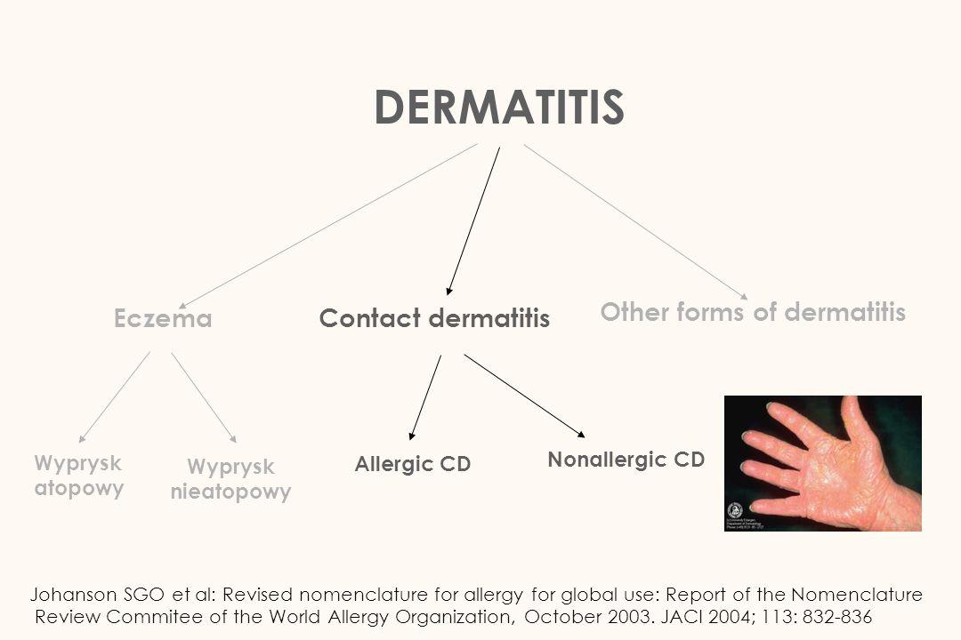 Contact dermatitis Wyprysk kontaktowy Alergiczny Niealergiczny Wyprysk z podrażnienia / toksyczny Wyprysk potnicowy / dyshydrotyczny