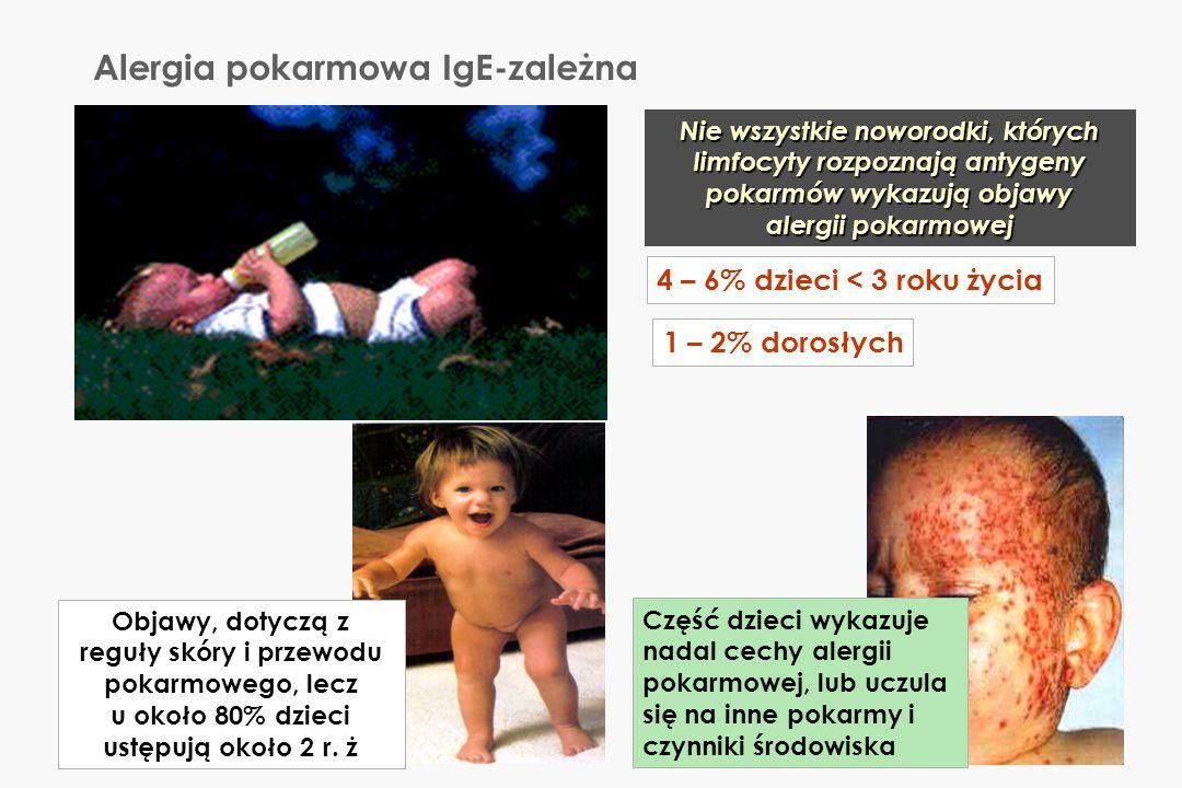 Alergia pokarmowa IgE-zależna Nie wszystkie noworodki, których limfocyty rozpoznają antygeny pokarmów wykazują objawy alergii pokarmowej Objawy, dotyc