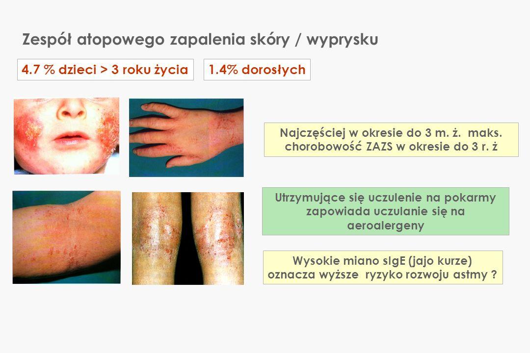 Naturalna ewolucja uczuleń na pokarmy i aeroalergeny Multicenter Allergy Study - MAS Pacjenci: dzieci (n=216) kohorta (N = 4082) Metody: sIgE metodą RAST w: 1, 2, 3, 4, 5 i 6 roku życia Kulig M et al.: Natural course of sensitization to food and inhalant allergens during the first 6 years of life JACI 1999; 103: 1175-1179 1 rok życia6 rok życia Pokarmy jajo, mleko, soja, mąka pszenna10% 3% Inne czynniki środowiskowe trawy, brzoza, roztocza, kot, pies 1.5%8% 1 2 Nadwrażliwość na pokarmy u niemowląt i dzieci
