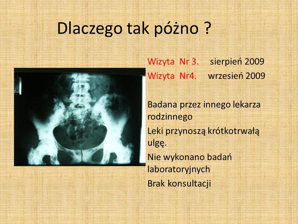 Dlaczego tak póżno ? Wizyta Nr 3. sierpień 2009 Wizyta Nr4. wrzesień 2009 Badana przez innego lekarza rodzinnego Leki przynoszą krótkotrwałą ulgę. Nie