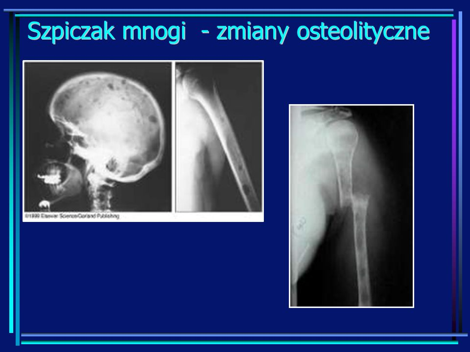 rozsiane ogniskowe zmiany w kończynach dolnych oraz górnej części ciała w obrazie PET (pozytonowa tomografia emisyjna) Szpiczak mnogi - rozsiane zmiany w obrazie PET