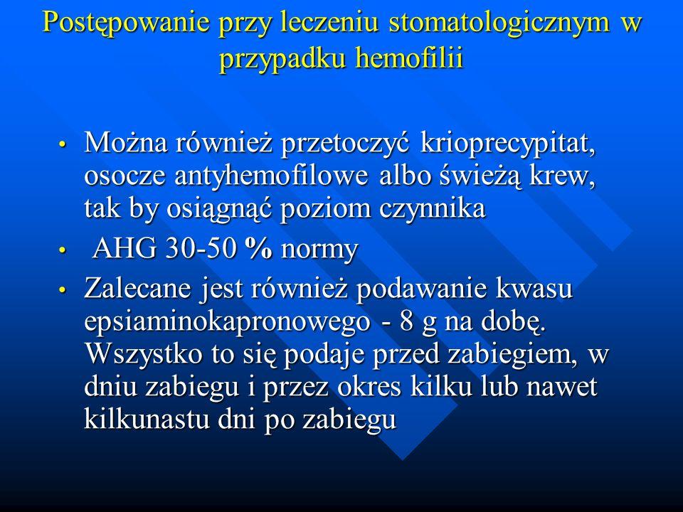 Postępowanie przy leczeniu stomatologicznym w przypadku hemofilii Można również przetoczyć krioprecypitat, osocze antyhemofilowe albo świeżą krew, tak by osiągnąć poziom czynnika Można również przetoczyć krioprecypitat, osocze antyhemofilowe albo świeżą krew, tak by osiągnąć poziom czynnika AHG 30-50 % normy AHG 30-50 % normy Zalecane jest również podawanie kwasu epsiaminokapronowego - 8 g na dobę.