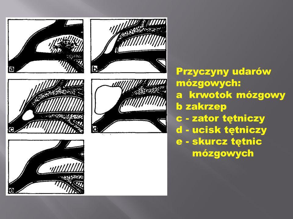 Przyczyny udarów mózgowych: a  krwotok mózgowy b zakrzep c - zator tętniczy d - ucisk tętniczy e - skurcz tętnic mózgowych