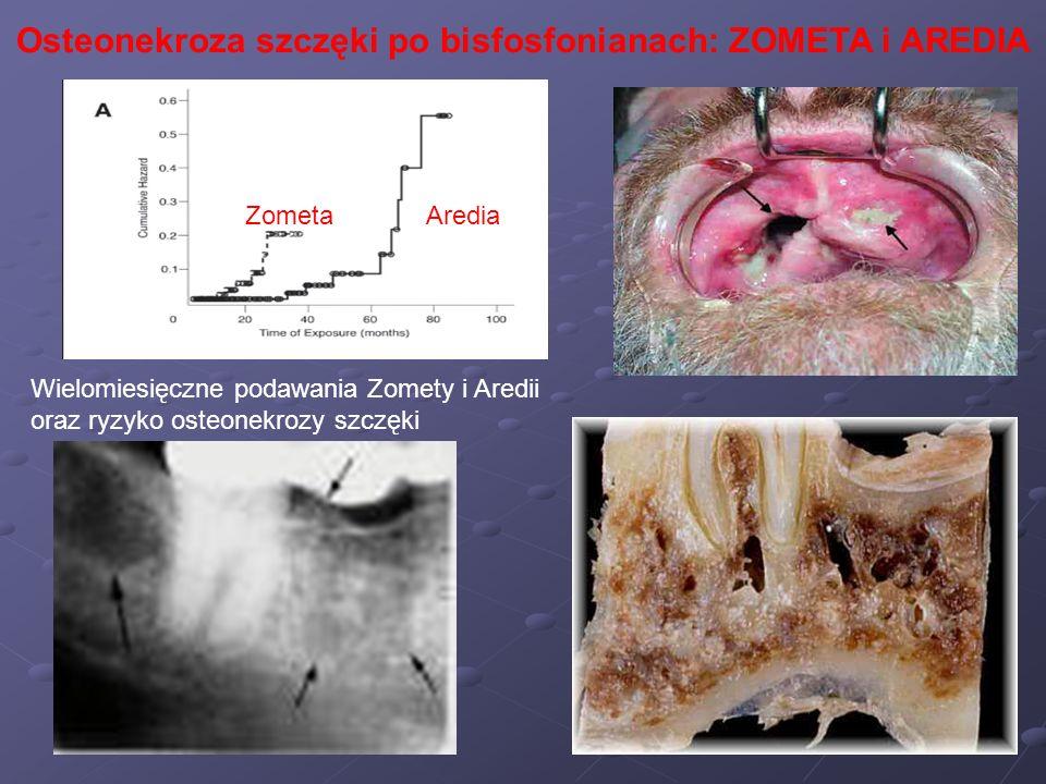 Osteonekroza szczęki po bisfosfonianach: ZOMETA i AREDIA Wielomiesięczne podawania Zomety i Aredii oraz ryzyko osteonekrozy szczęki ZometaAredia