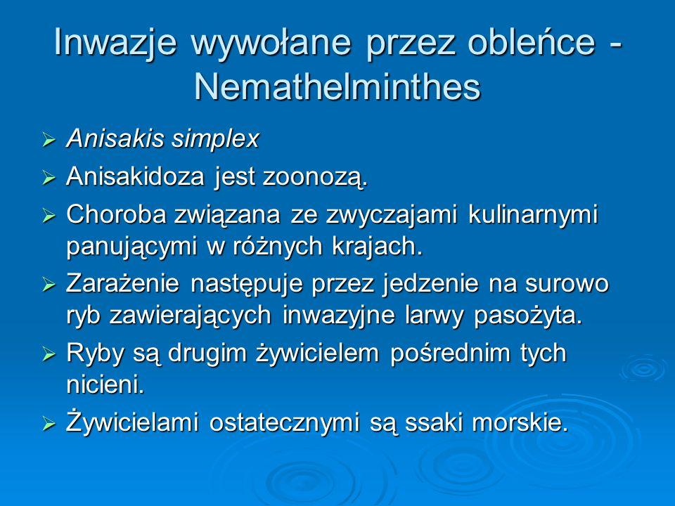 Inwazje wywołane przez obleńce - Nemathelminthes Anisakis simplex Anisakis simplex Anisakidoza jest zoonozą. Anisakidoza jest zoonozą. Choroba związan
