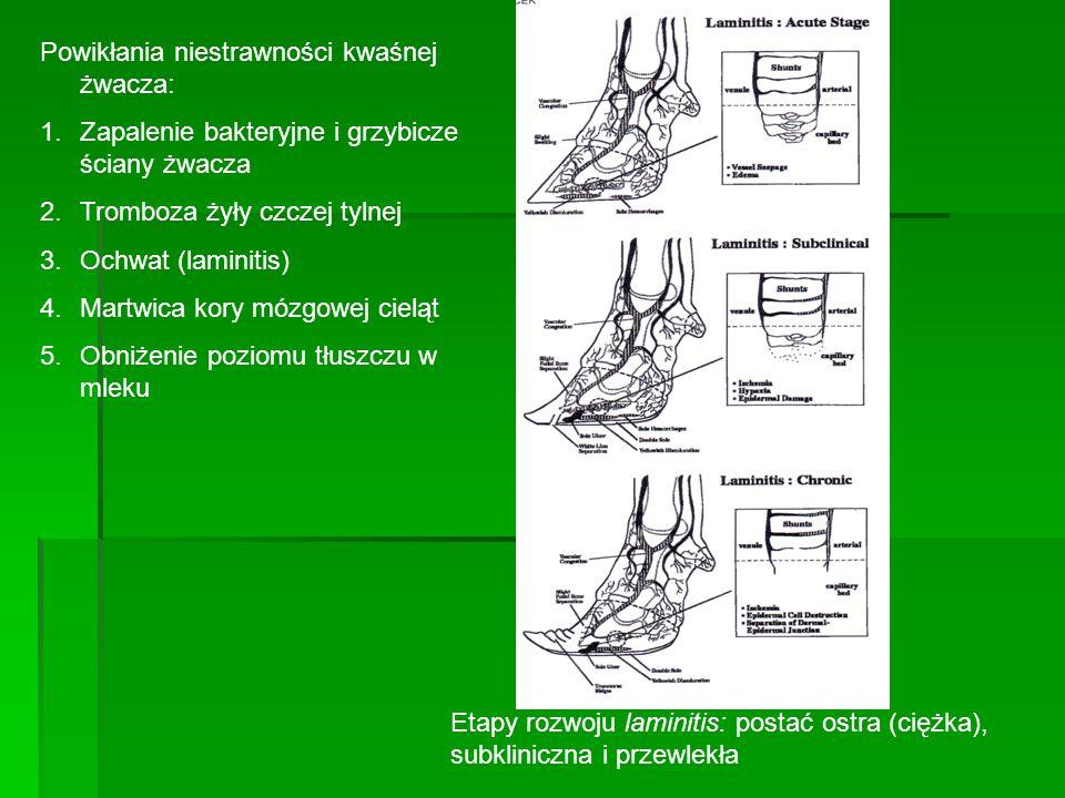 Powikłania niestrawności kwaśnej żwacza: 1.Zapalenie bakteryjne i grzybicze ściany żwacza 2.Tromboza żyły czczej tylnej 3.Ochwat (laminitis) 4.Martwic