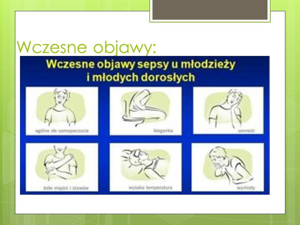 Objawy chorobowe Gorączka Bóle głowy, ból gardła Bóle stawów, mięśni Przy wzroście gorączki pojawiają się nudności, biegunka, wymioty Na skórze mogą pojawić się wybroczyny ( ciemnoczerwone zmiany), wykwity o charakterze krwotocznym.