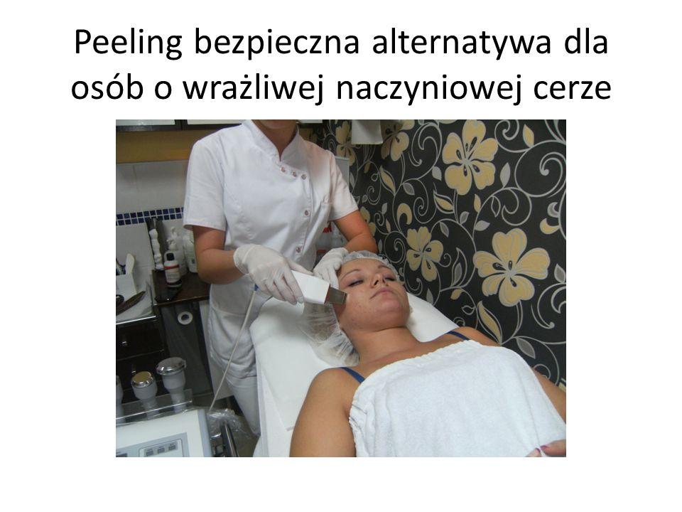 Peeling bezpieczna alternatywa dla osób o wrażliwej naczyniowej cerze