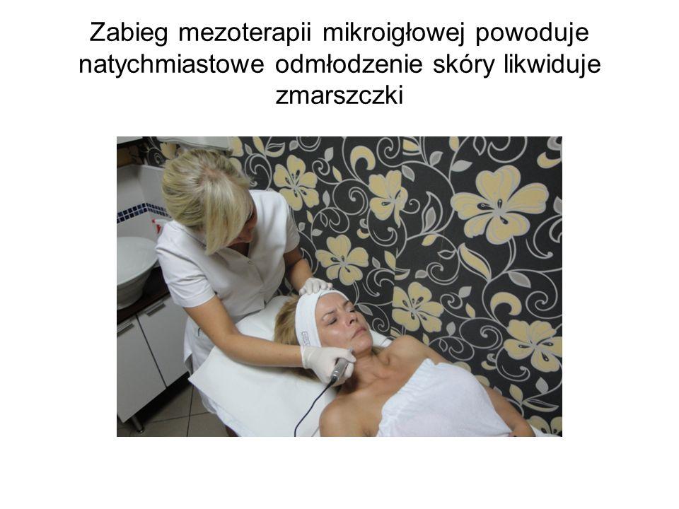 Zabieg mezoterapii mikroigłowej powoduje natychmiastowe odmłodzenie skóry likwiduje zmarszczki