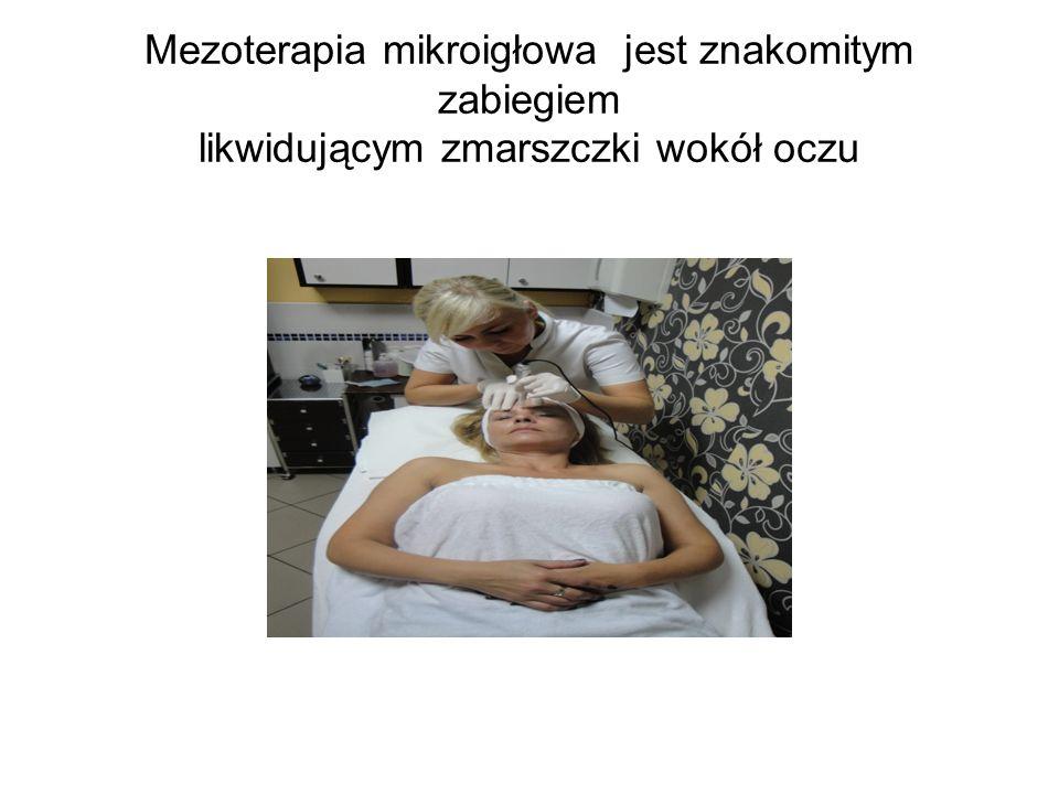 Mezoterapia mikroigłowa jest znakomitym zabiegiem likwidującym zmarszczki wokół oczu