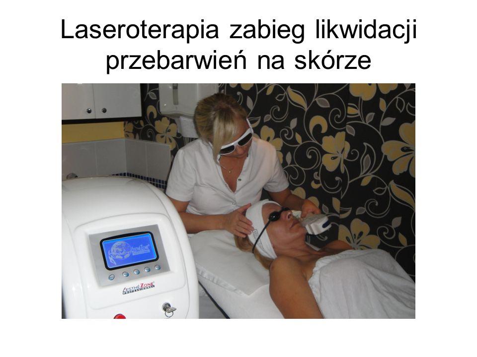 Laseroterapia zabieg likwidacji przebarwień na skórze