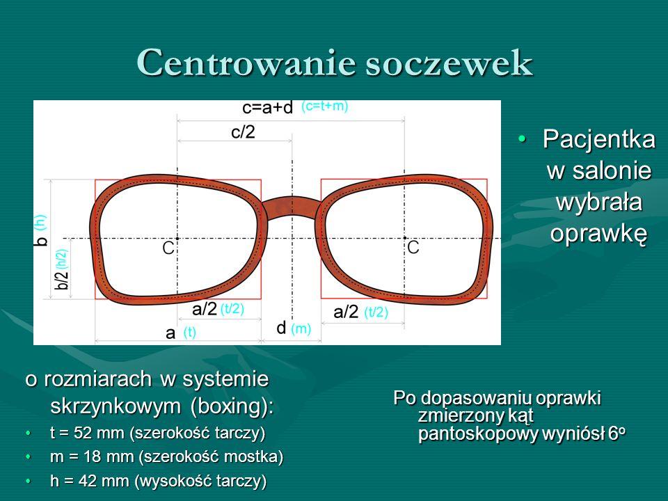 Centrowanie soczewek Pacjentka w salonie wybrała oprawkę o rozmiarach w systemie skrzynkowym (boxing): t = 52 mm (szerokość tarczy)t = 52 mm (szerokoś