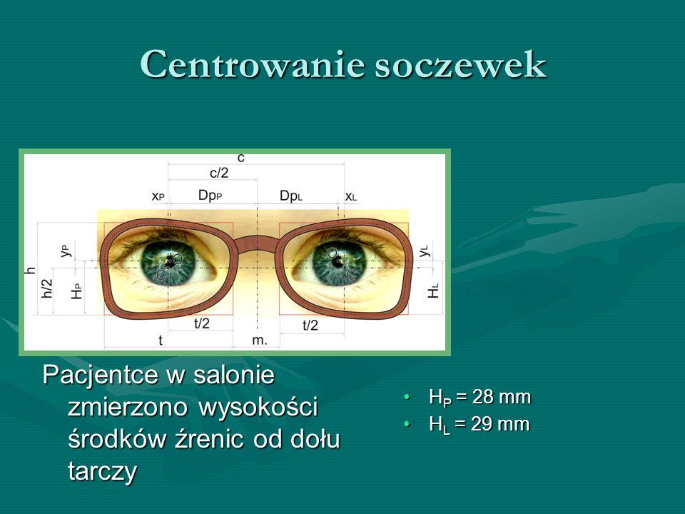Centrowanie soczewek Pacjentce w salonie zmierzono wysokości środków źrenic od dołu tarczy H P = 28 mmH P = 28 mm H L = 29 mmH L = 29 mm