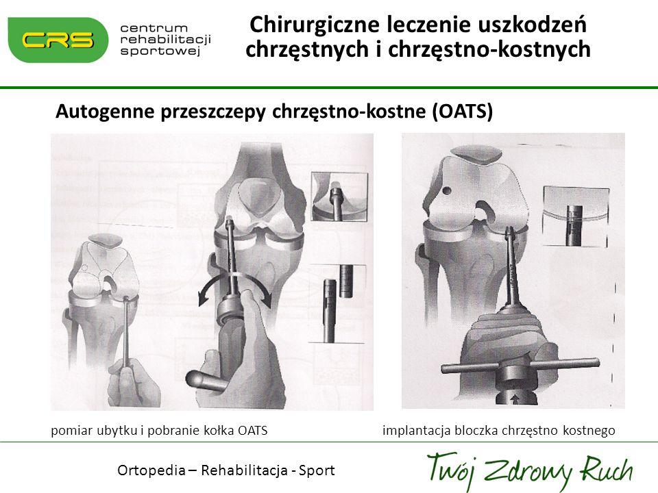 Autogenne przeszczepy chrzęstno-kostne (OATS) pomiar ubytku i pobranie kołka OATS implantacja bloczka chrzęstno kostnego Chirurgiczne leczenie uszkodz