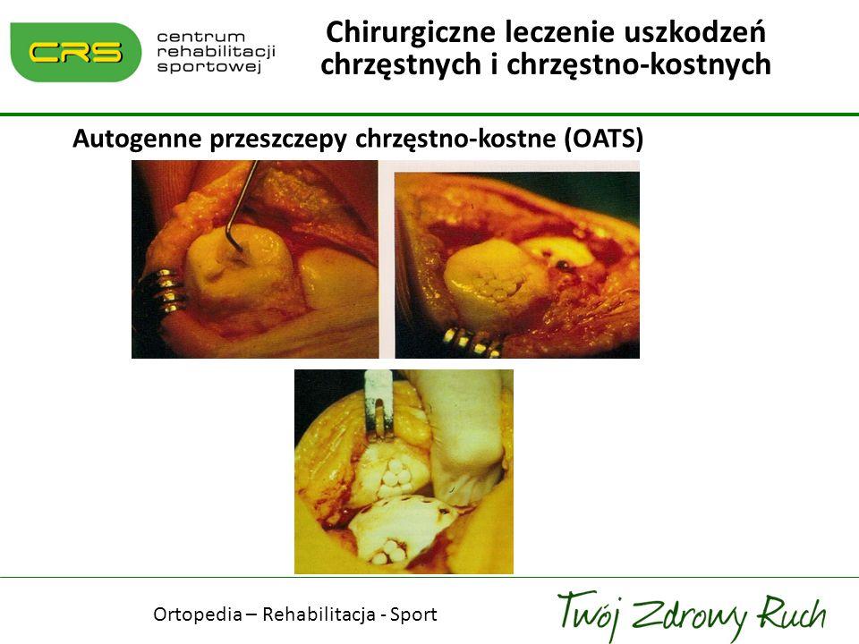 Autogenne przeszczepy chrzęstno-kostne (OATS) Chirurgiczne leczenie uszkodzeń chrzęstnych i chrzęstno-kostnych Ortopedia – Rehabilitacja - Sport