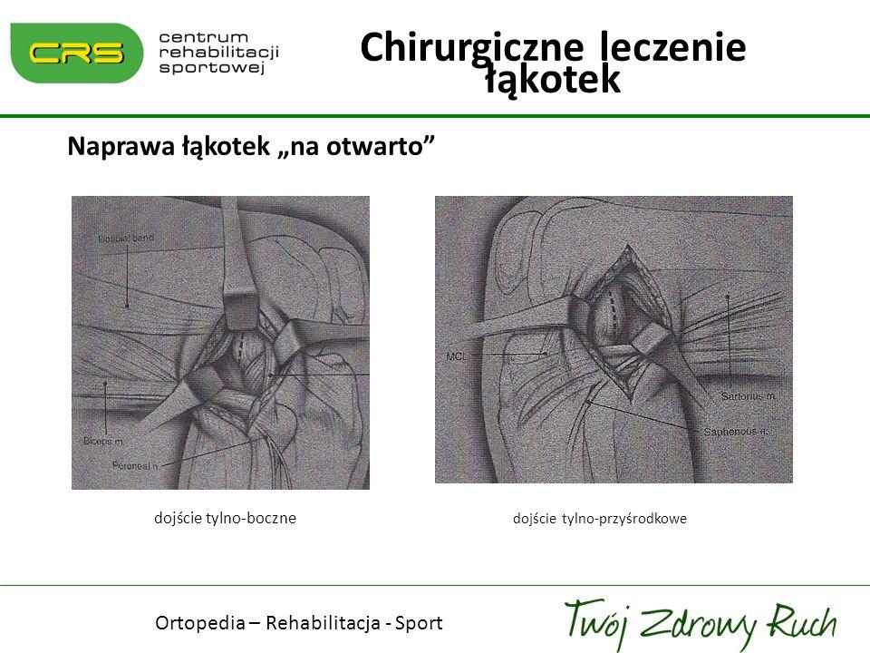 Naprawa łąkotek na otwarto dojście tylno-boczne dojście tylno-przyśrodkowe Chirurgiczne leczenie łąkotek Ortopedia – Rehabilitacja - Sport