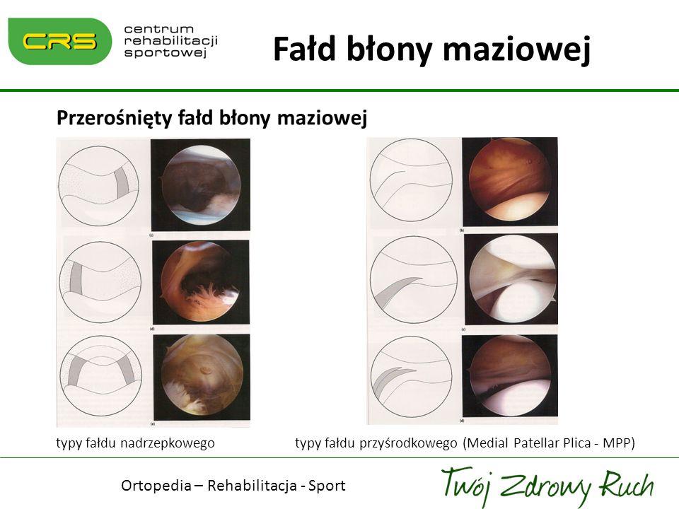 Przerośnięty fałd błony maziowej typy fałdu nadrzepkowego typy fałdu przyśrodkowego (Medial Patellar Plica - MPP) Fałd błony maziowej Ortopedia – Reha