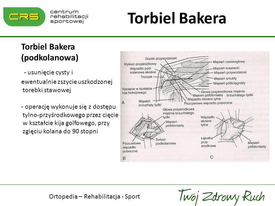 Torbiel Bakera (podkolanowa) - usunięcie cysty i ewentualnie zszycie uszkodzonej torebki stawowej - operację wykonuje się z dostępu tylno-przyśrodkowe