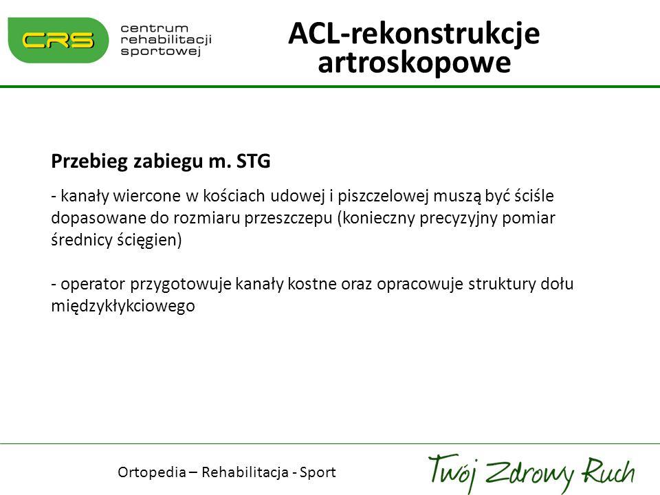 Przebieg zabiegu m. STG - kanały wiercone w kościach udowej i piszczelowej muszą być ściśle dopasowane do rozmiaru przeszczepu (konieczny precyzyjny p