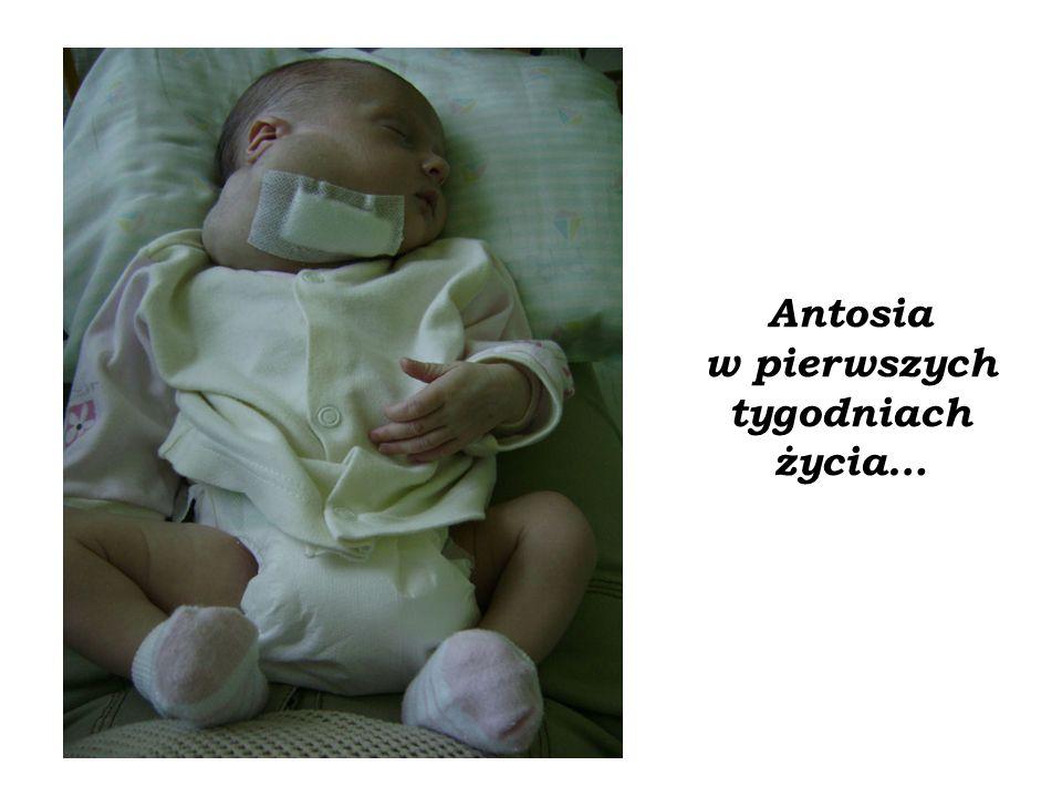 Antosia w pierwszych tygodniach życia…