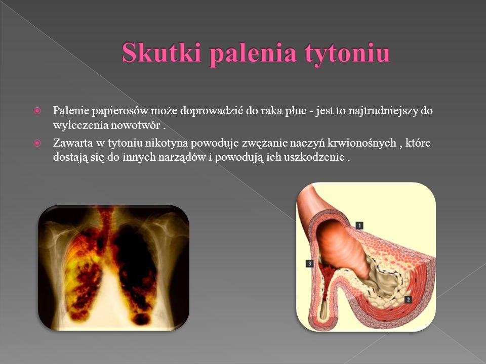 Palenie papierosów może doprowadzić do raka płuc - jest to najtrudniejszy do wyleczenia nowotwór. Zawarta w tytoniu nikotyna powoduje zwężanie naczyń