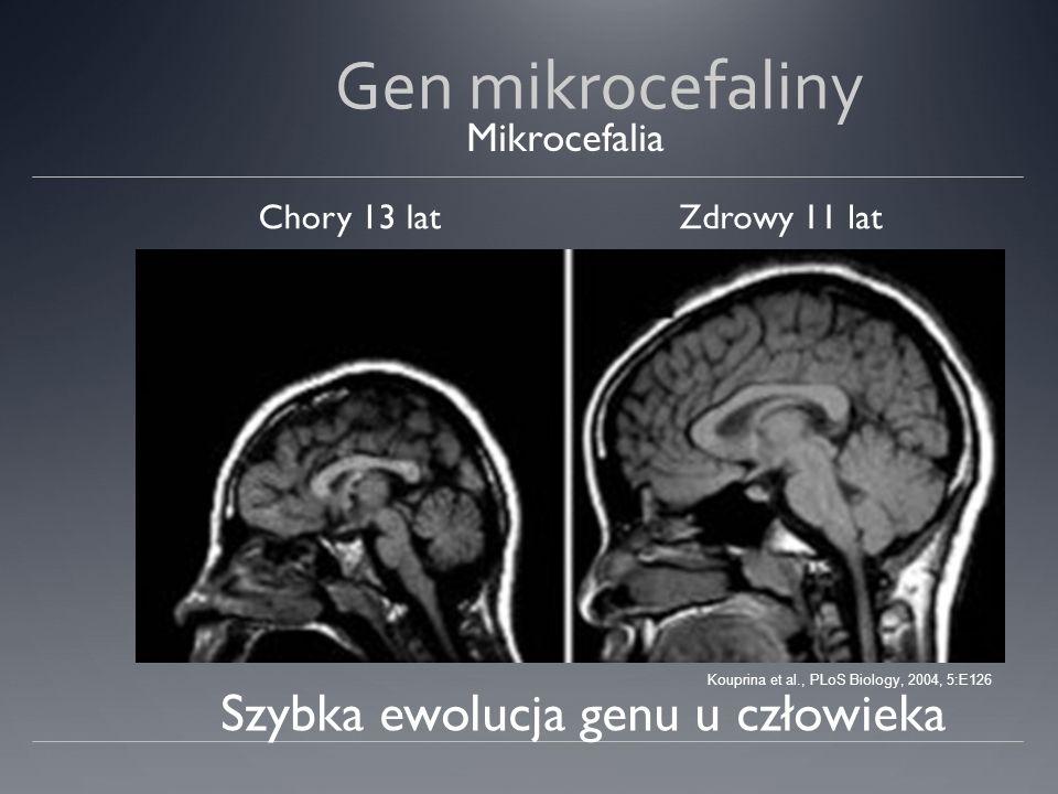 Gen mikrocefaliny Chory 13 latZdrowy 11 lat Szybka ewolucja genu u człowieka Mikrocefalia Kouprina et al., PLoS Biology, 2004, 5:E126