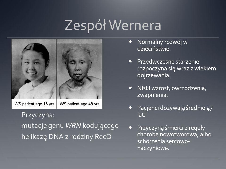 Zespół Wernera Normalny rozwój w dzieciństwie. Przedwczesne starzenie rozpoczyna się wraz z wiekiem dojrzewania. Niski wzrost, owrzodzenia, zwapnienia