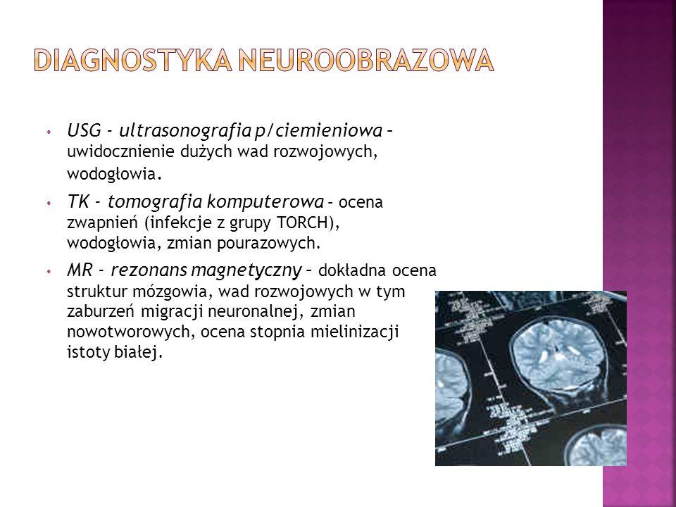 USG - ultrasonografia p/ciemieniowa – uwidocznienie dużych wad rozwojowych, wodogłowia. TK - tomografia komputerowa – ocena zwapnień (infekcje z grupy