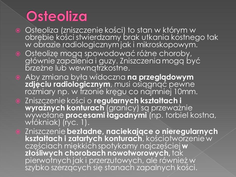 Osteosklerosis (zagęszczenie struktury kostnej) w obrazie radiologicznym może dawać zgrubienie, znikształcenie, zwiększenie liczby beleczek istoty gąbczastej oraz zaburzenia ich prawidłowego układu.