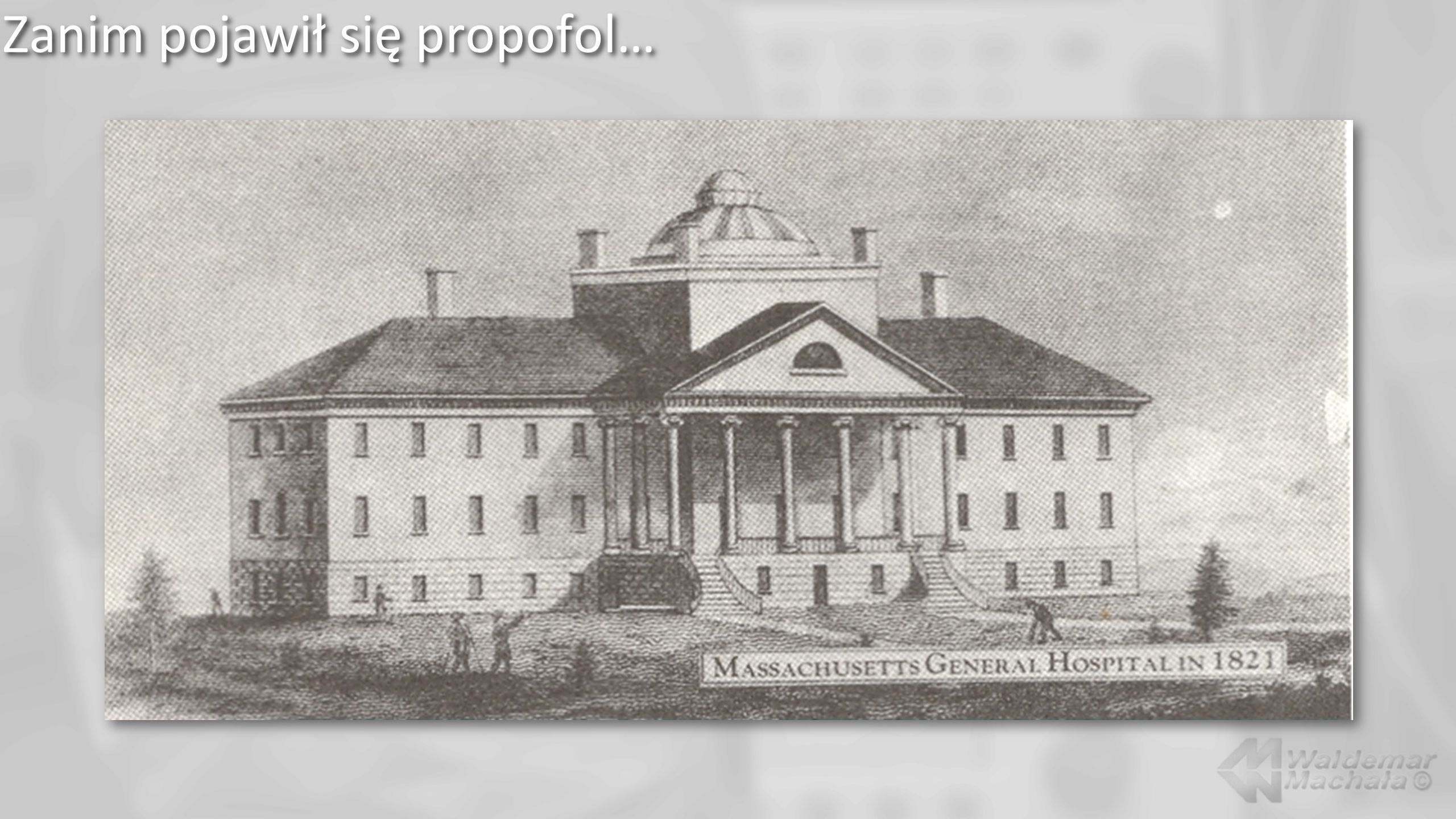 R. Hinckley: Pokaz narkozy eterowej – 16/10/1846 r. Massachusettes; 1882 r.