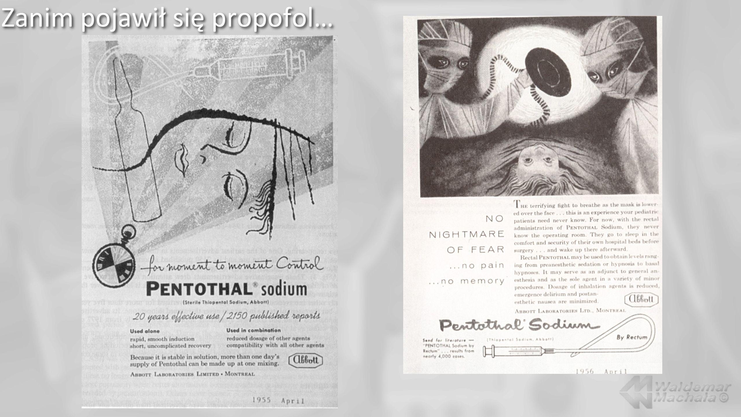 Propofol… Propofol Infusion Syndrome - zapobieganie Zalecenia: Society of Critical Care Medicine.