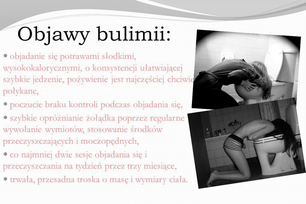 Objawy bulimii: objadanie się potrawami słodkimi, wysokokalorycznymi, o konsystencji ułatwiającej szybkie jedzenie, pożywienie jest najczęściej chciwi