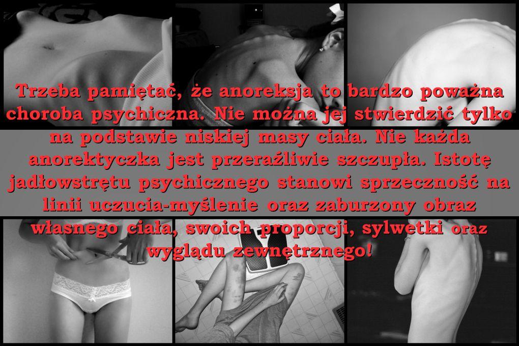 Trzeba pamiętać, że anoreksja to bardzo poważna choroba psychiczna. Nie można jej stwierdzić tylko na podstawie niskiej masy ciała. Nie każda anorekty